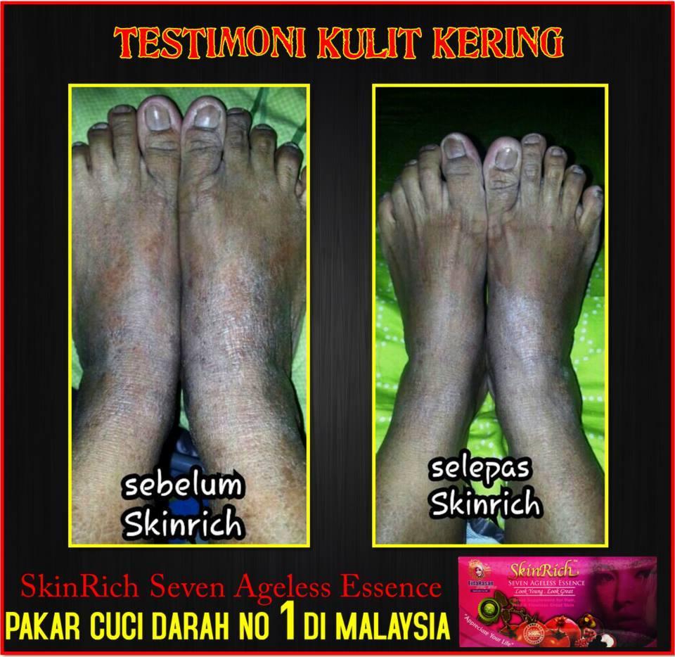 testimoni skinrich