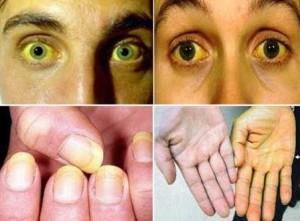petua-untuk-rawat-penyakit-kuning